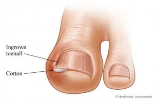 comment reparer des ongles de pieds