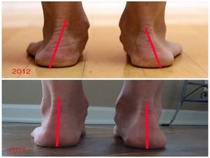 Le concept de  core stability  du pied 1